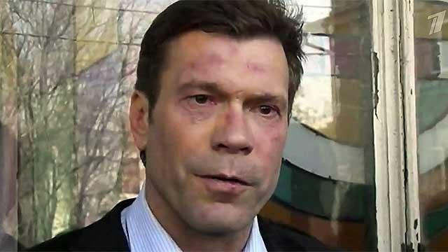Царева бьют даже террористы из Донецка