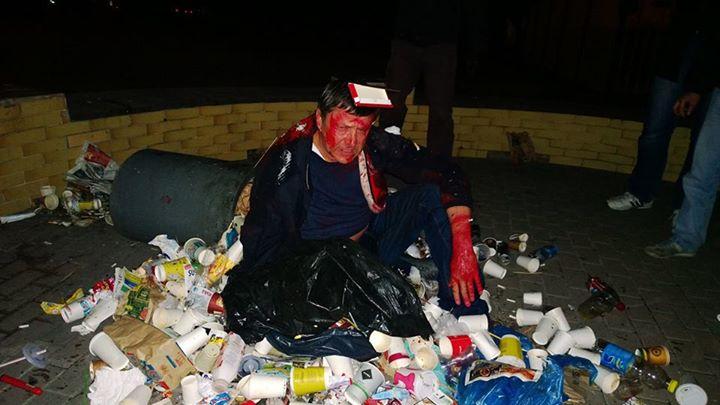 Пилипишина облили краской бросили в мусорку. Фото