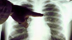 Власти Китая сообщили о четвертом погибшем от пневмонии
