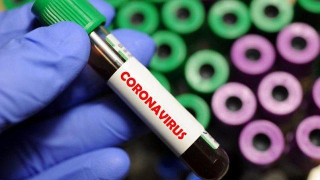 В Украине за минувшие сутки 848 человек заболели на COVID-19